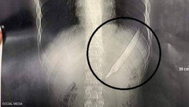 صورة مصري يبتلع سكينا طوله 27 سنتيمترا.. والأطباء يصنعون معجزة